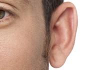 EAR REPAIR EARLOBE SURGERY IN DUBAI AESTHETIC SURGERY